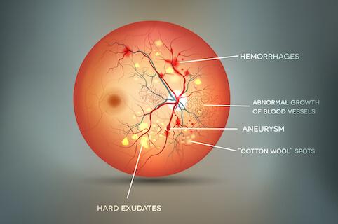 Medical illustration of diabetic retinopathy