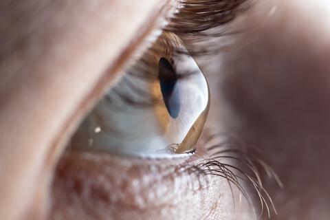 Close up view of a cornea with Keratoconus
